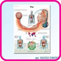 Плакат медицинский РАК